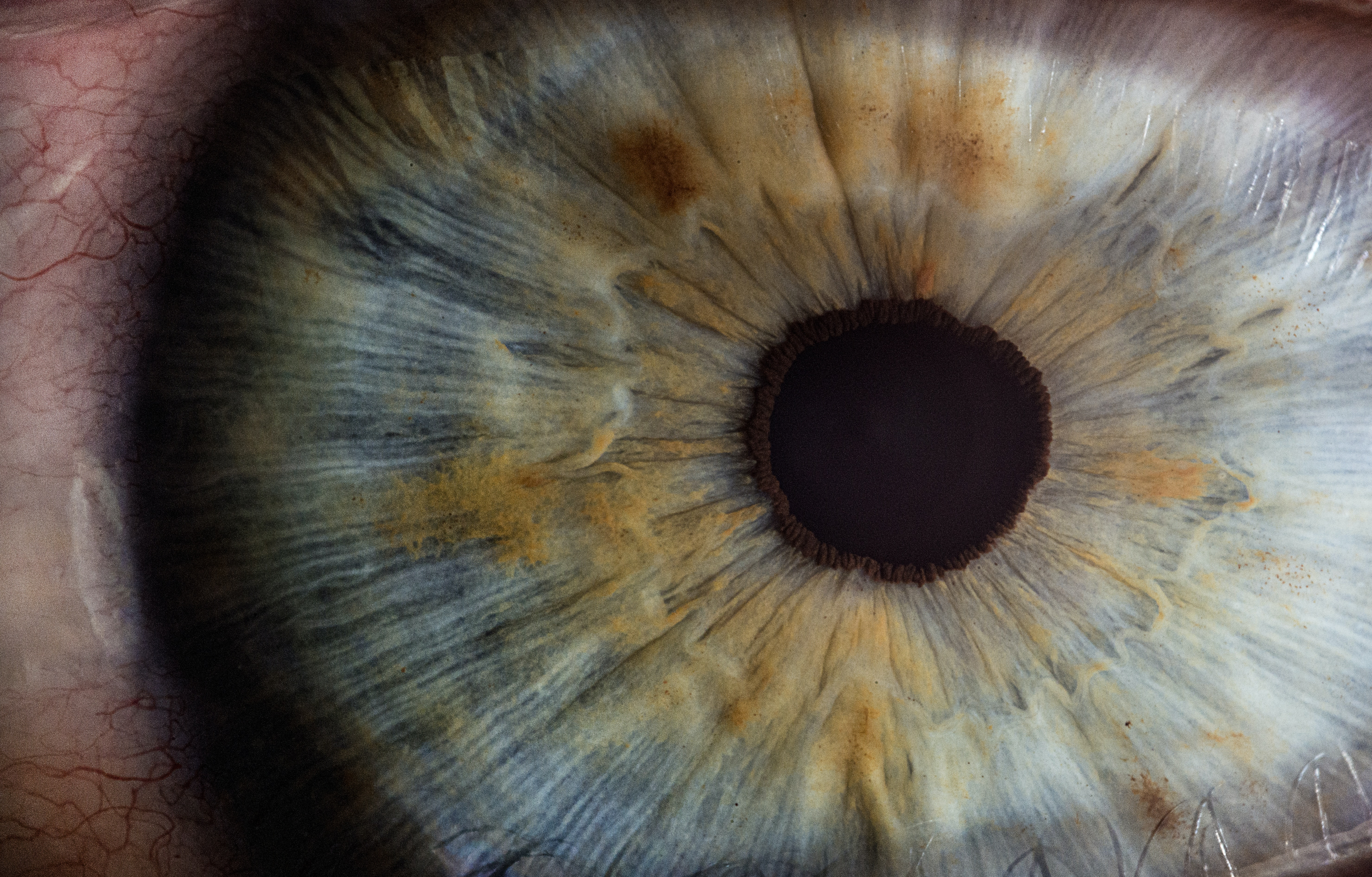 2 Million Cases of Blindness Traced Back to a Handful of Eye Disease Genes