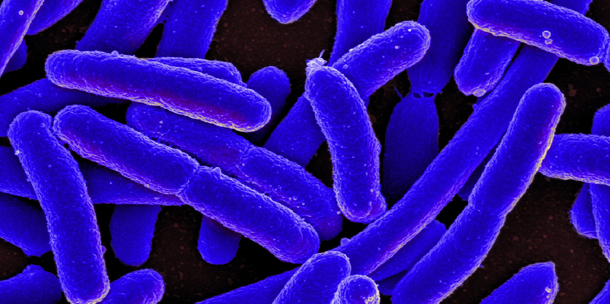 Colorized scanning electron micrograph of Escherichia coli, grown in culture and adhered to a cover slip.