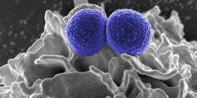 Methicillin-Resistant staphylococcus (MRSA) Bacteria