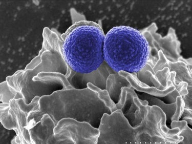 New Drug Could Treat Superbugs Without Fostering Resistance