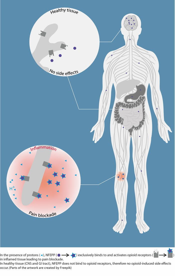 This image shows how NFEPP avoids the side effects common to most opioids by only binding to inflamed, low-pH tissue.