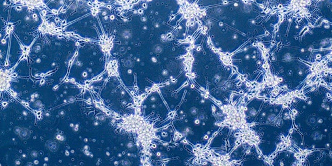 Glioblastoma cells john mccain