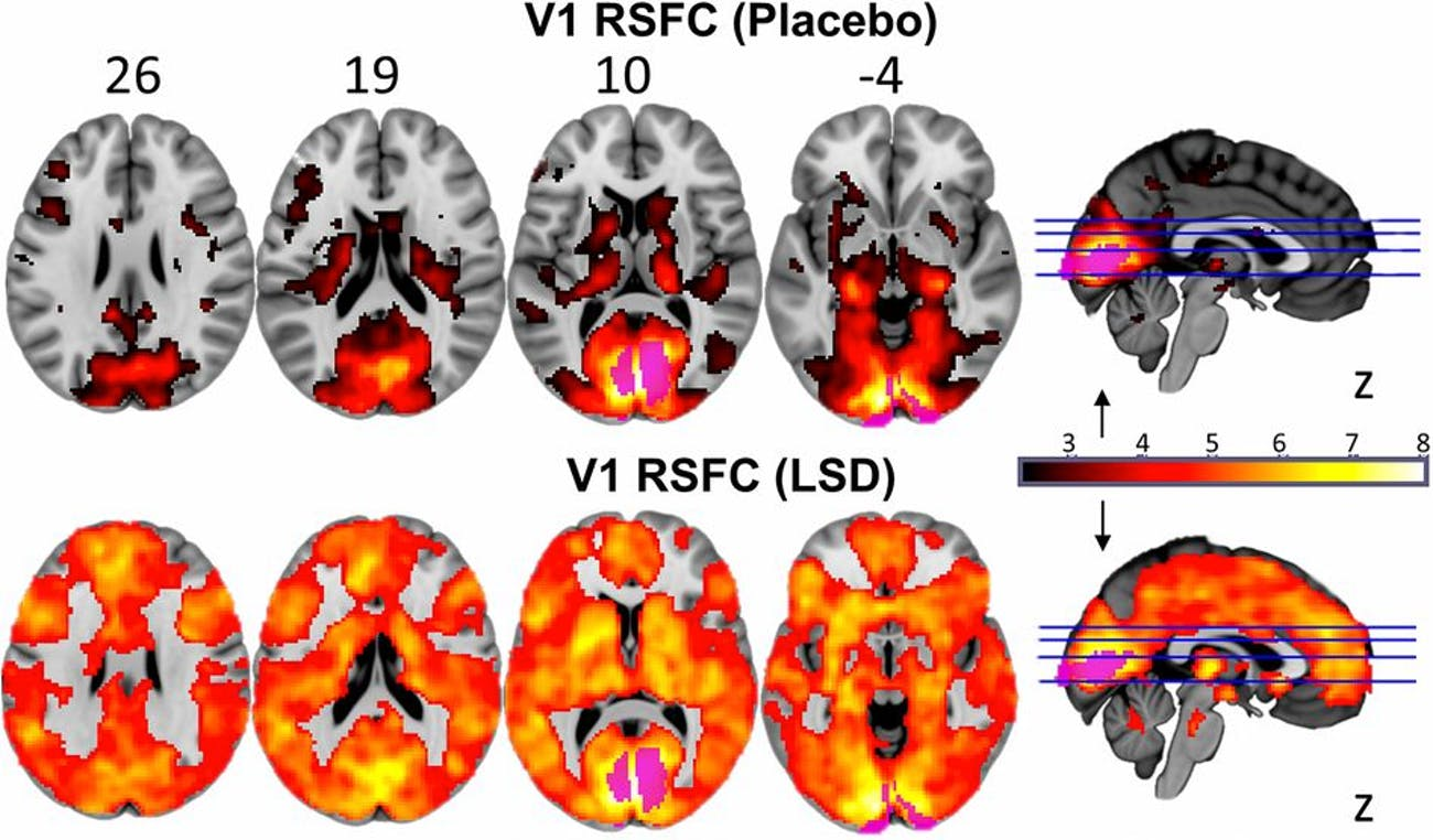 Significant between-condition differences (orange = increases) in RSFC between the V1 seed region (purple) and the rest of the brain.