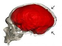 Neanderthal cranium