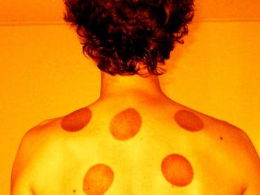 What Science Actually Has to Say About Cupping Therapy