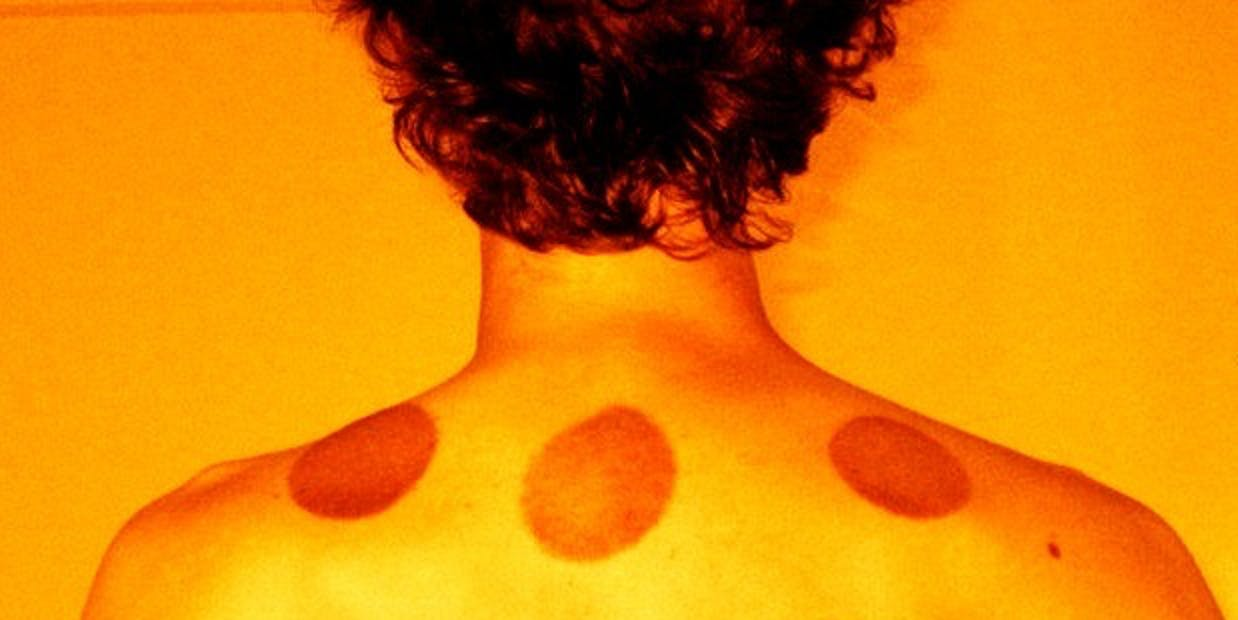 what science really has to say about cupping therapy inverse