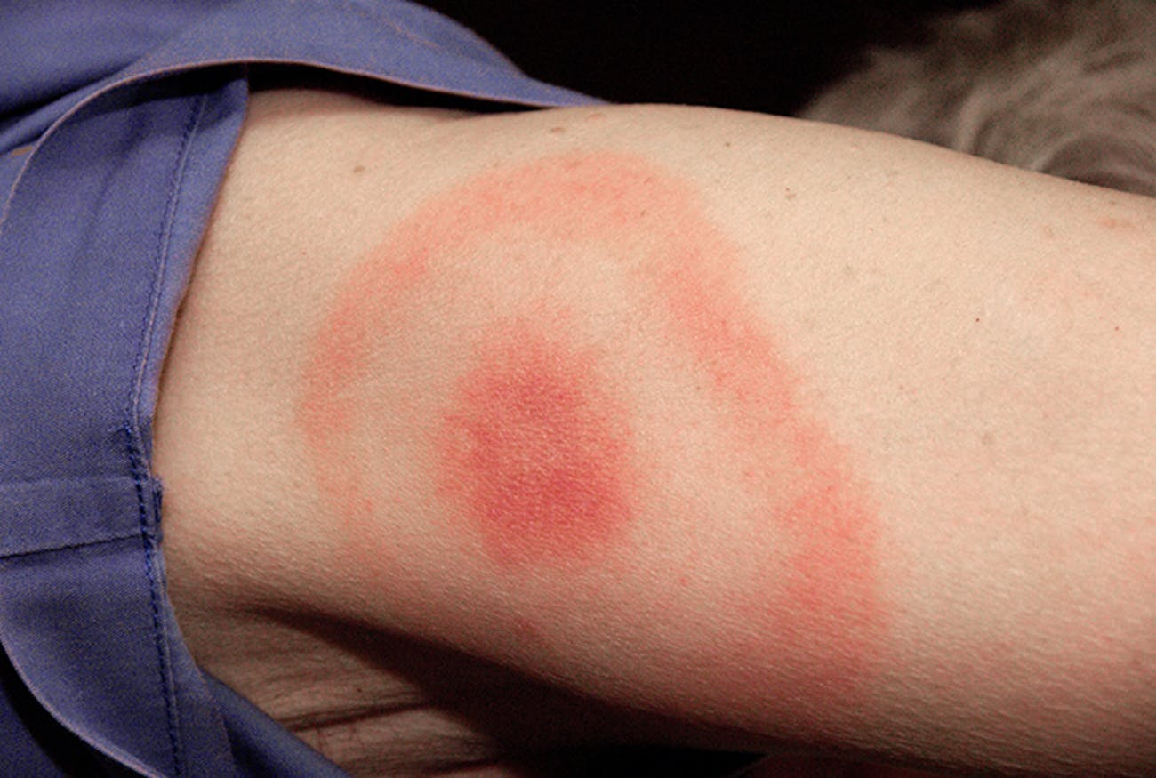 tick rash lyme disease