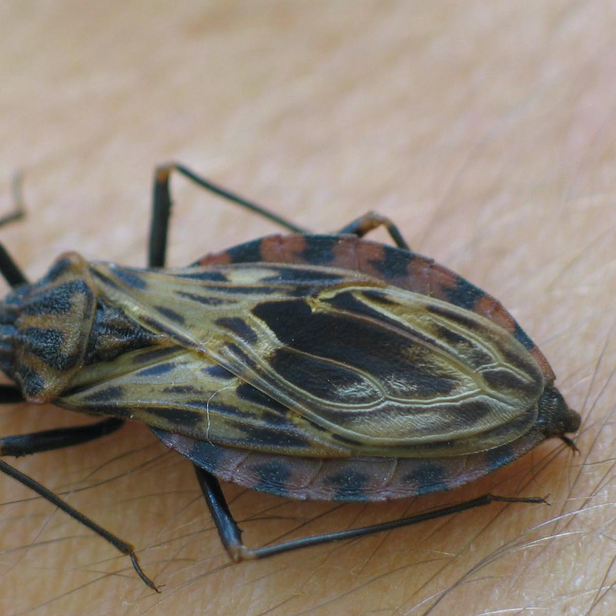 Chagas Disease: American Heart Association Warns Doctors to Be Vigilant
