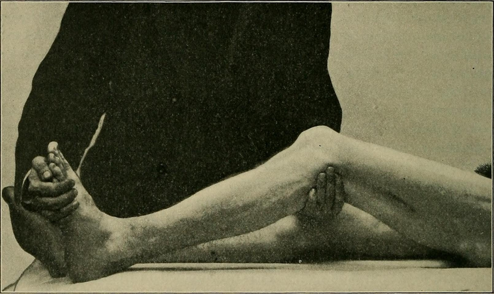 "Image from page 317 of ""A practical treatise on medical diagnosis for students and physicians"" (1904)"
