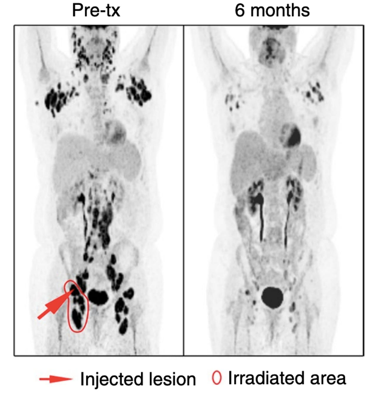 One patient's PET scans show just how significant the reduction in tumors was six months after treatment.