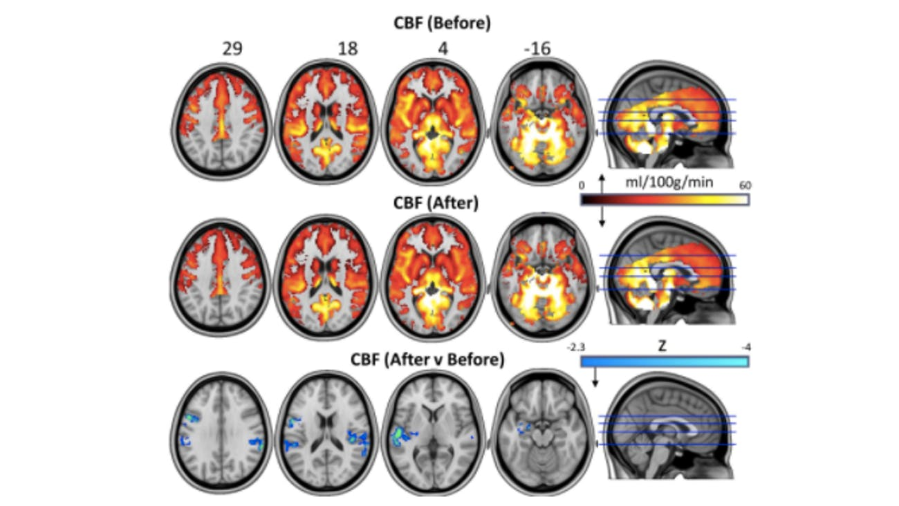 psilocybin effects on brain