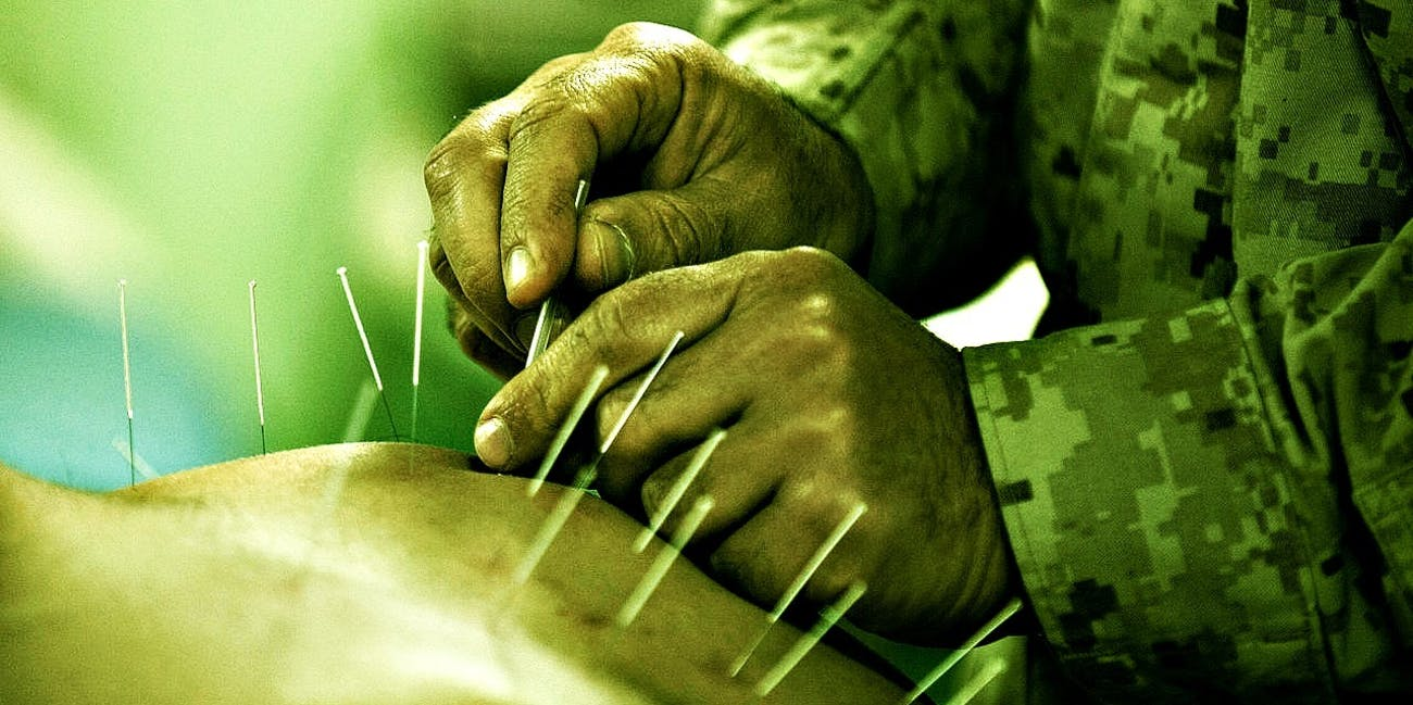 acupuncture treatment head needles