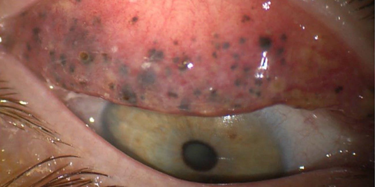 eyes ophthalmology eye injury eye disease