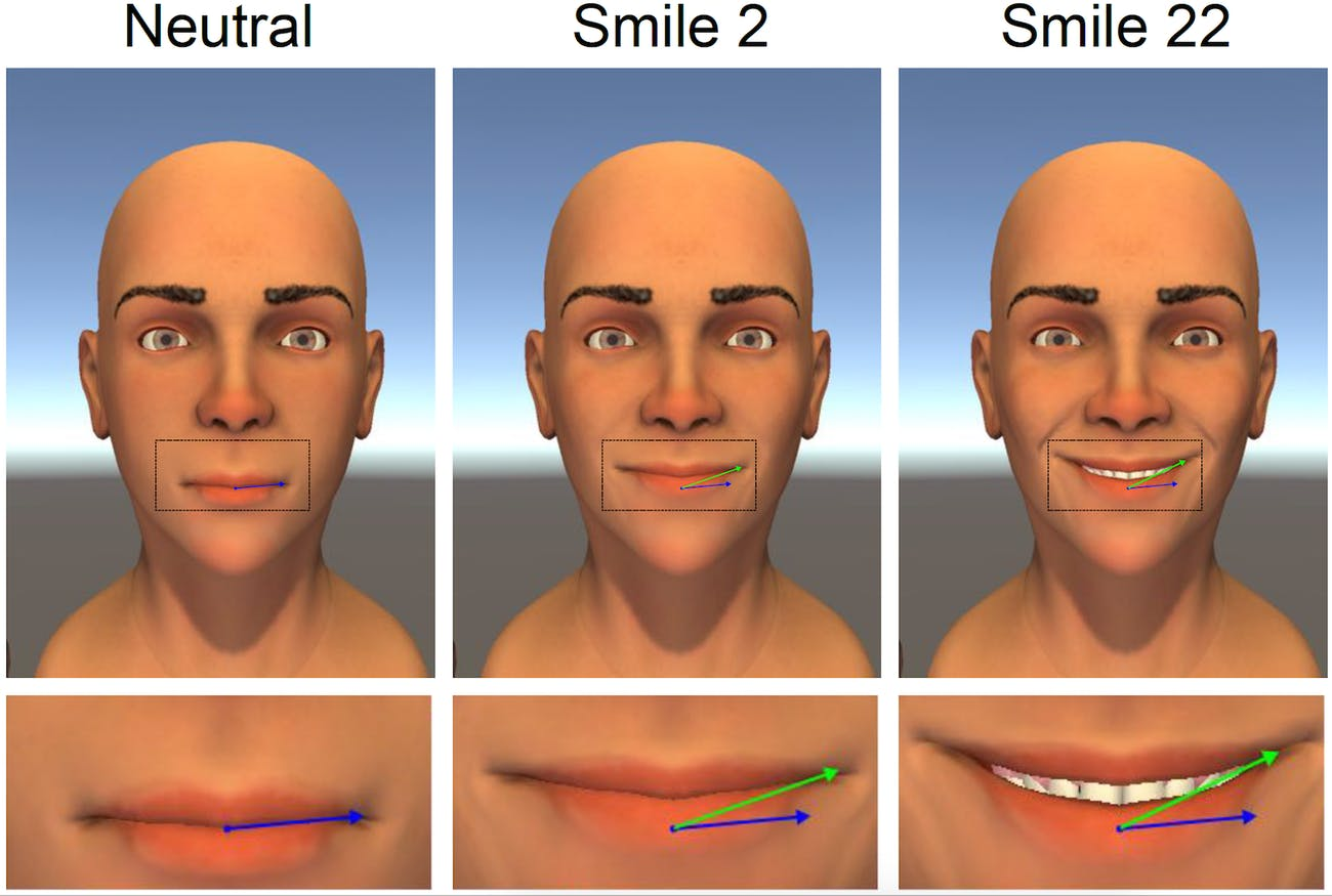 optimal mouth smile symmetry perfect smile rehabilitation simulation 3D animation