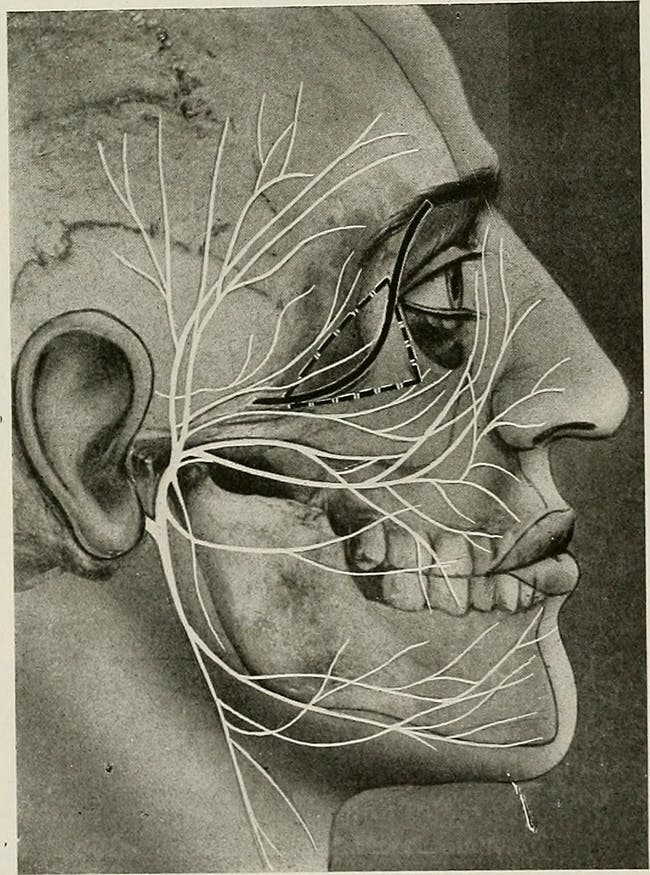 """Image from page 160 of """"Surgical treatment; a practical treatise on the therapy of surgical diseases for the use of practitioners and students of surgery"""" (1920)"""