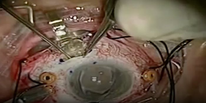making a bionic eye for the blind