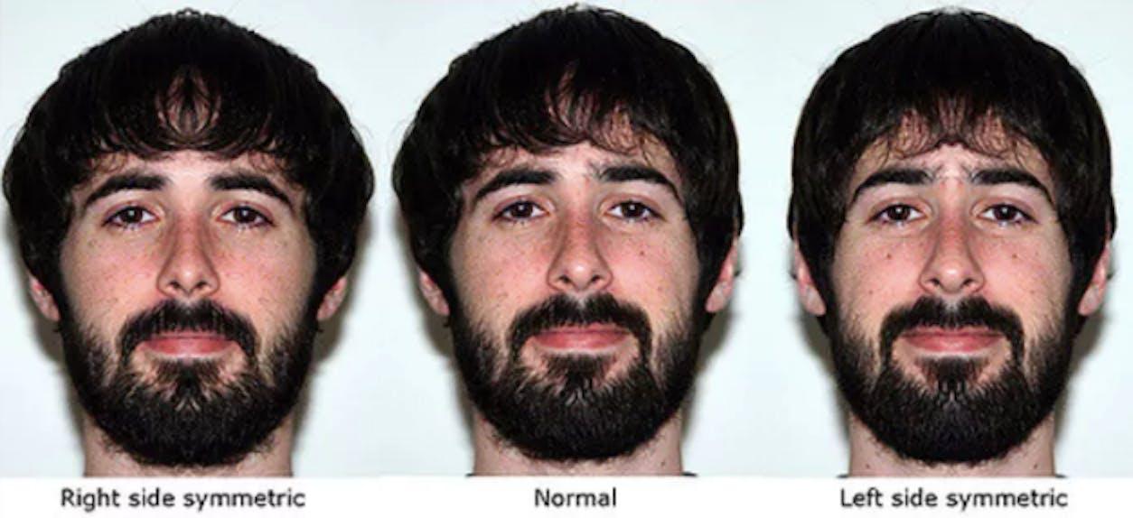 facial symmetry