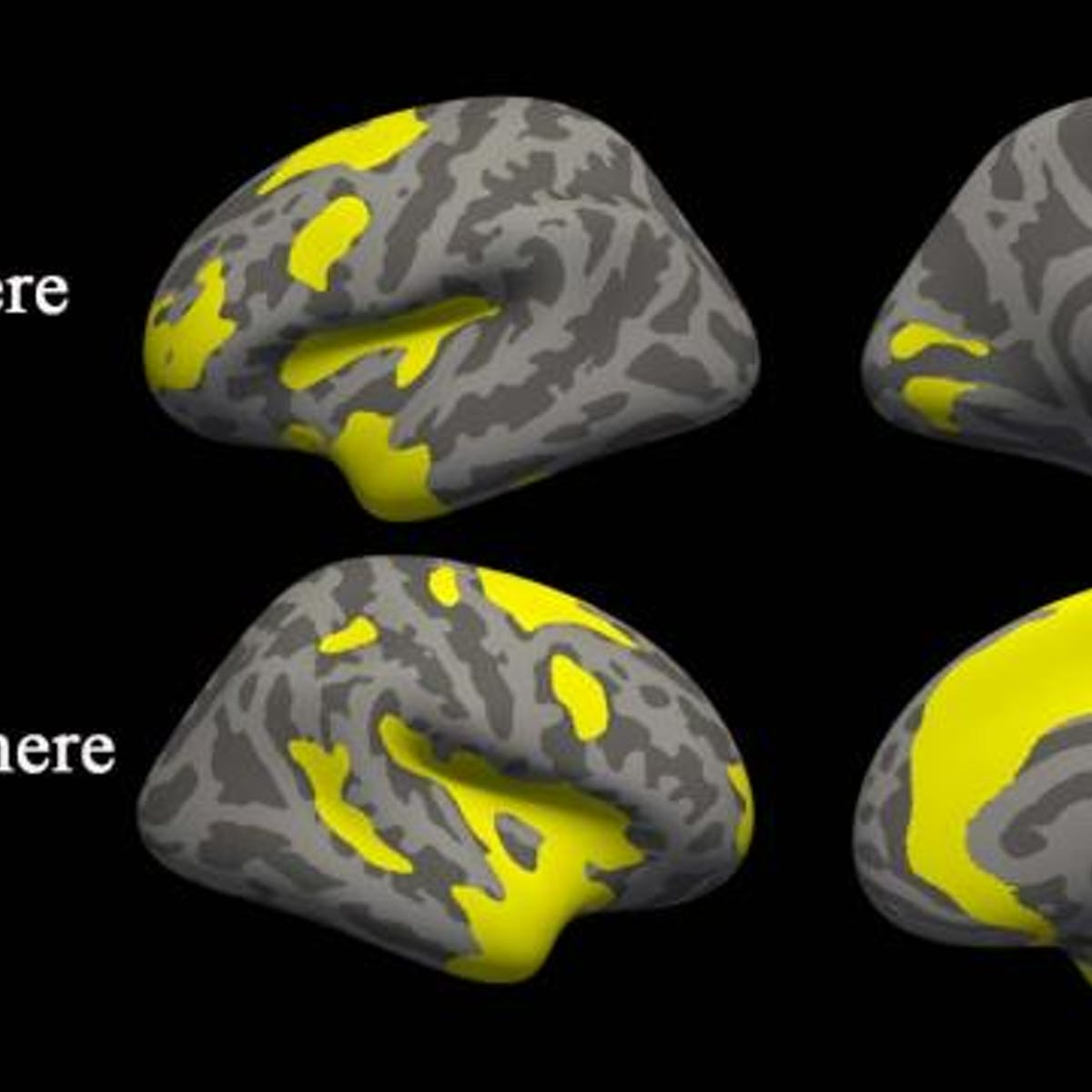Anxiety and Depression Change Brain Structure In Similar Ways