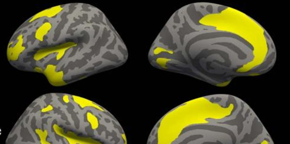 Similar Changes In Brains Of Patients >> Anxiety And Depression Change Brain Structure In Similar Ways Inverse
