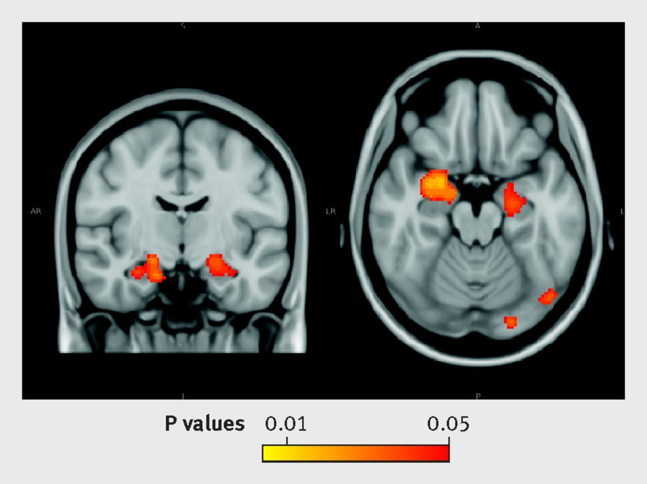 Welp, Even Occasional Happy Hour Drinks Muck Your Brain