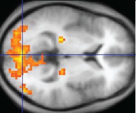An fMRI scan.
