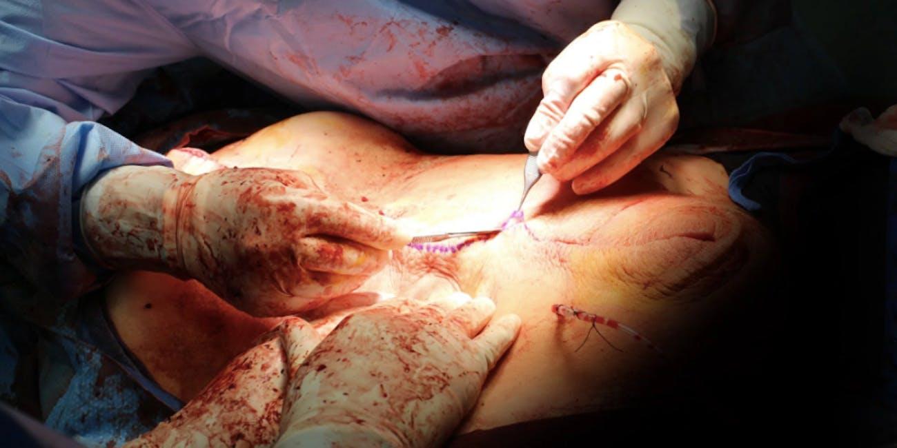 mucinous tumor surgery