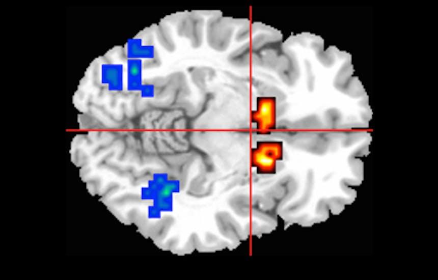 brain on CBD