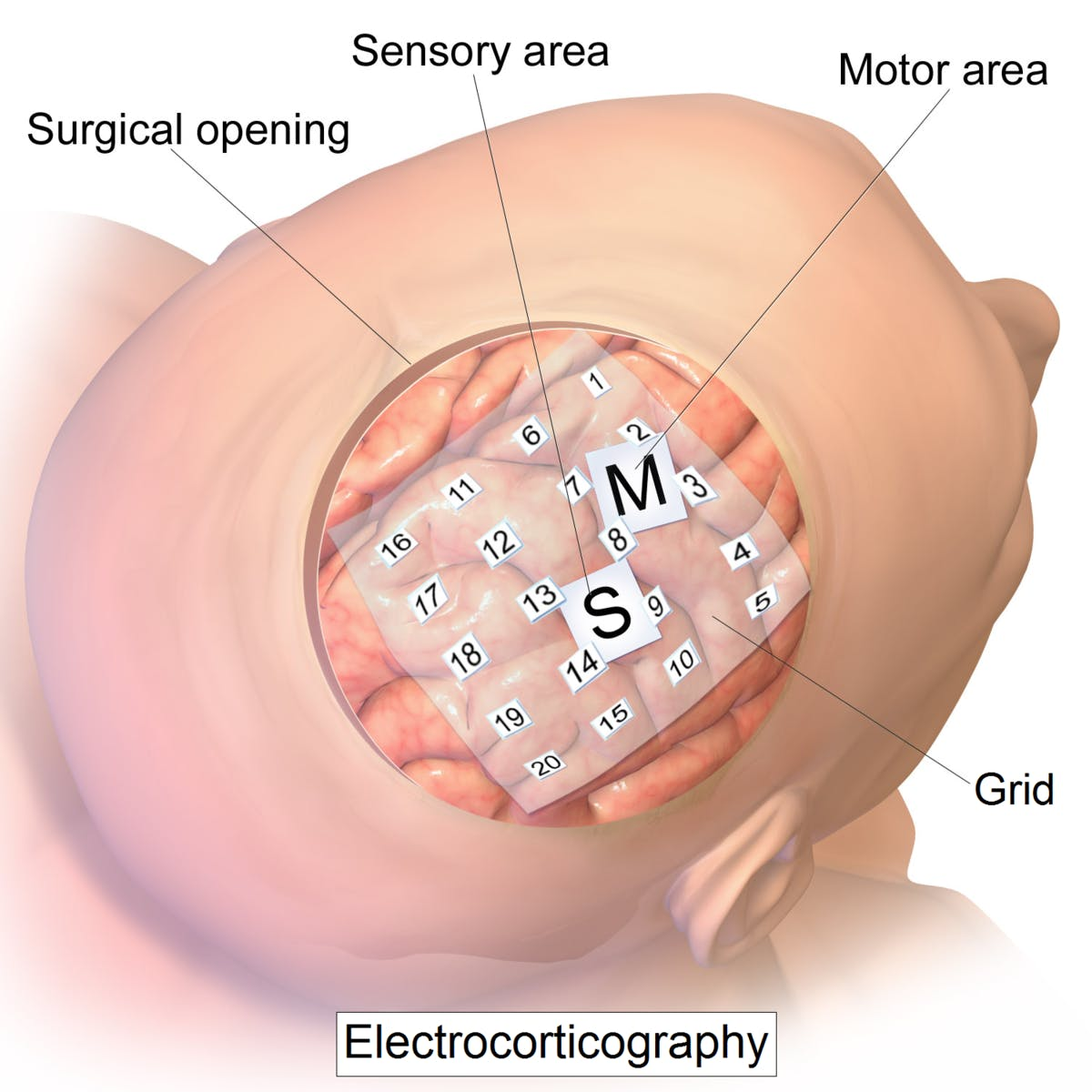 electrocorticography