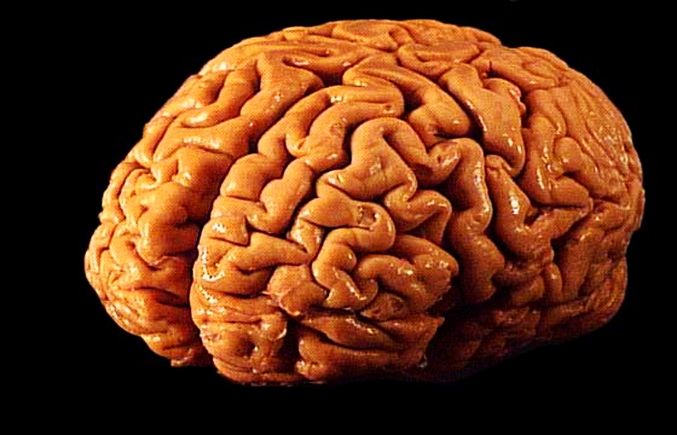 Human Brain Size Grew 200 Percent In 3 Million Years Inverse
