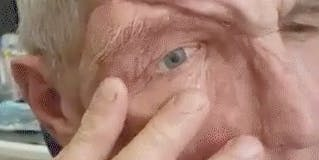 Man removes facial prosthesis.
