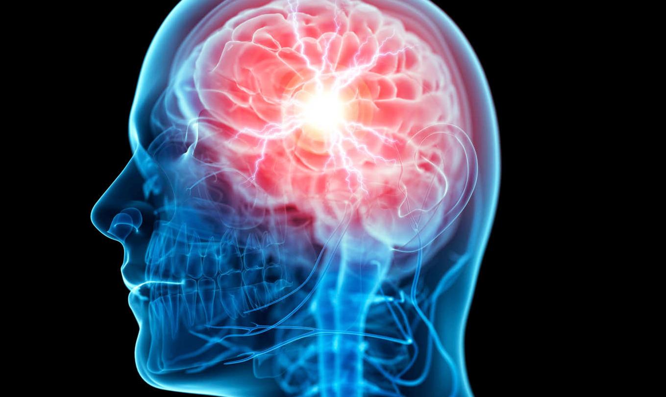 brain computer interface can translate thoughts into speech inversea brain computer interface can translate simple thoughts into speech