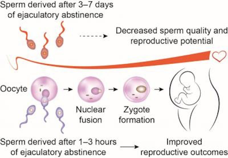IVF chart