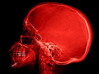 Nat's Brain