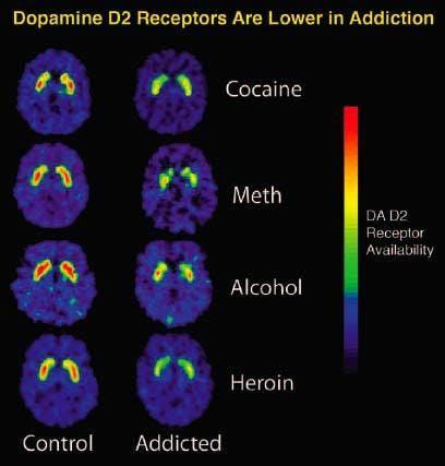 Alcohol changes the brain's neurobehavioral processes.