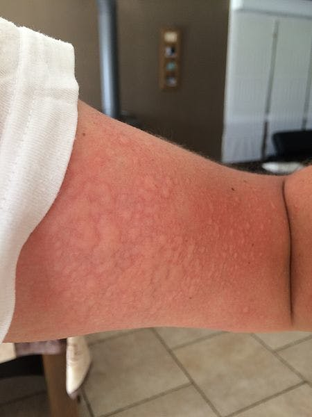 A case of cold urticaria.