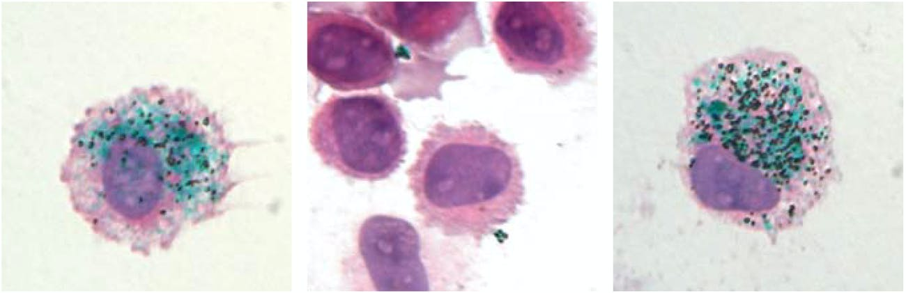 Macrophages encapsulate green tattoo ink pigment (left) and release it when the cells are killed (center). But 90 days later, new macrophages develop and swallow up the pigment again (right).