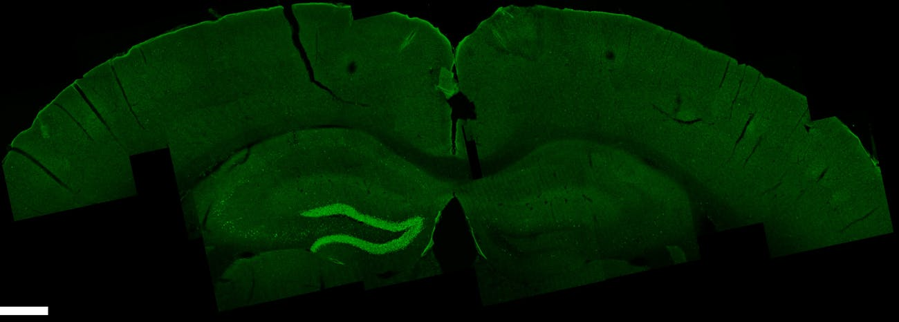 rat brain hippocampus TI temporal temporally interference stimulation neuroscience