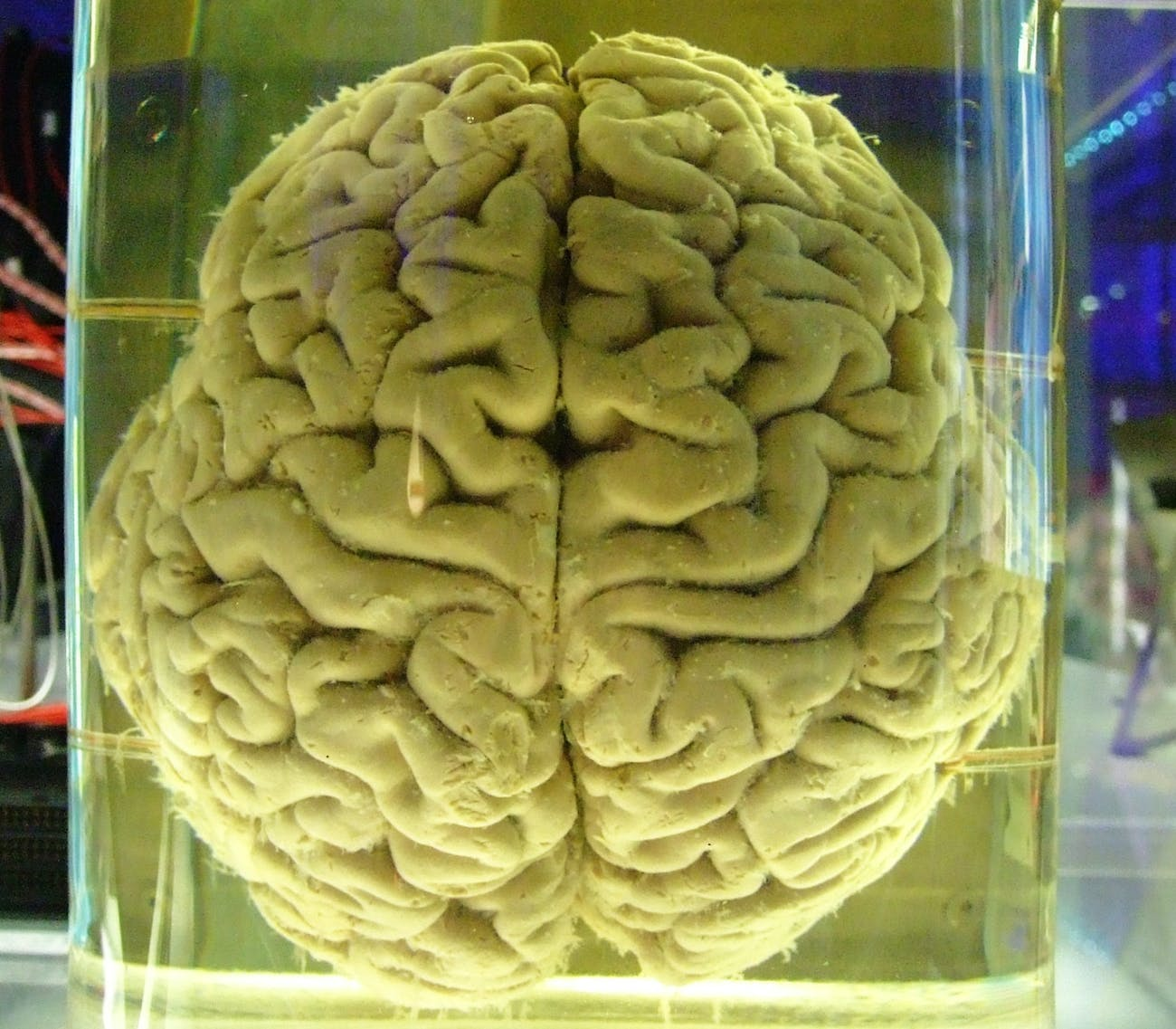 A real-life human brain, not Sally from 'Pacific Rim Uprising'.