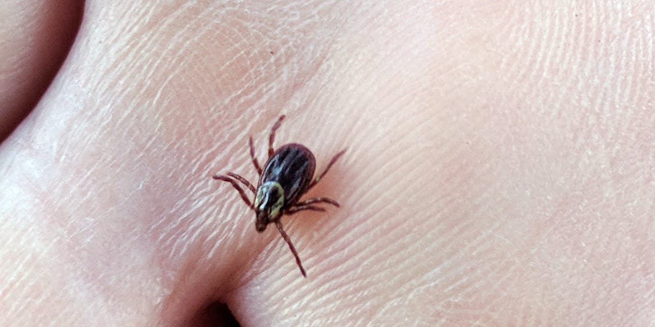 American dog tick in hand