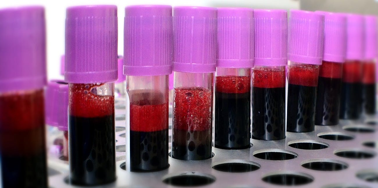 Scientists Develop Ingenious Way to Convert Blood Into Universal Donor Type