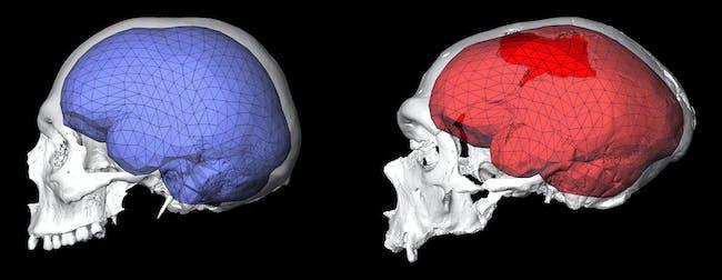 Neanderthal brain shape
