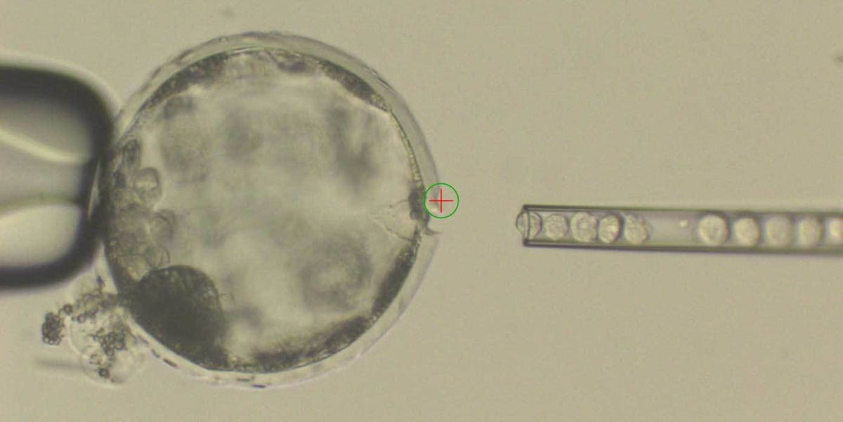 Human stem cells were pipetted into a pig embryo.