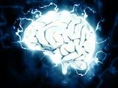 epileptic brain neurons