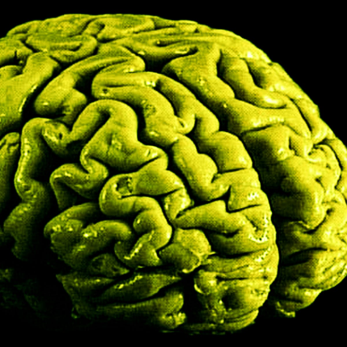 Long-Term Marijuana Use Changes Brain at the Cellular Level, Say Scientists