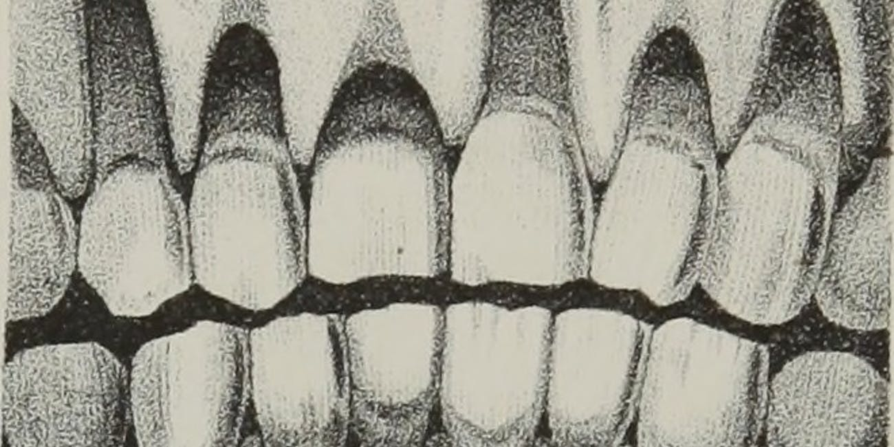 """Image from page 225 of """"The anatomy, physiology and pathology of the human teeth : with the most approved methods of treatment : including operations, and the method of making and setting artificial teeth, with thirty plates"""" (1844)"""