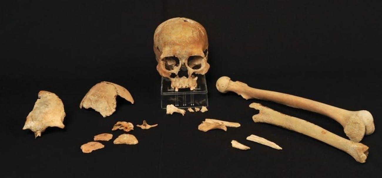 skeletal remains ancient human Scandinavia