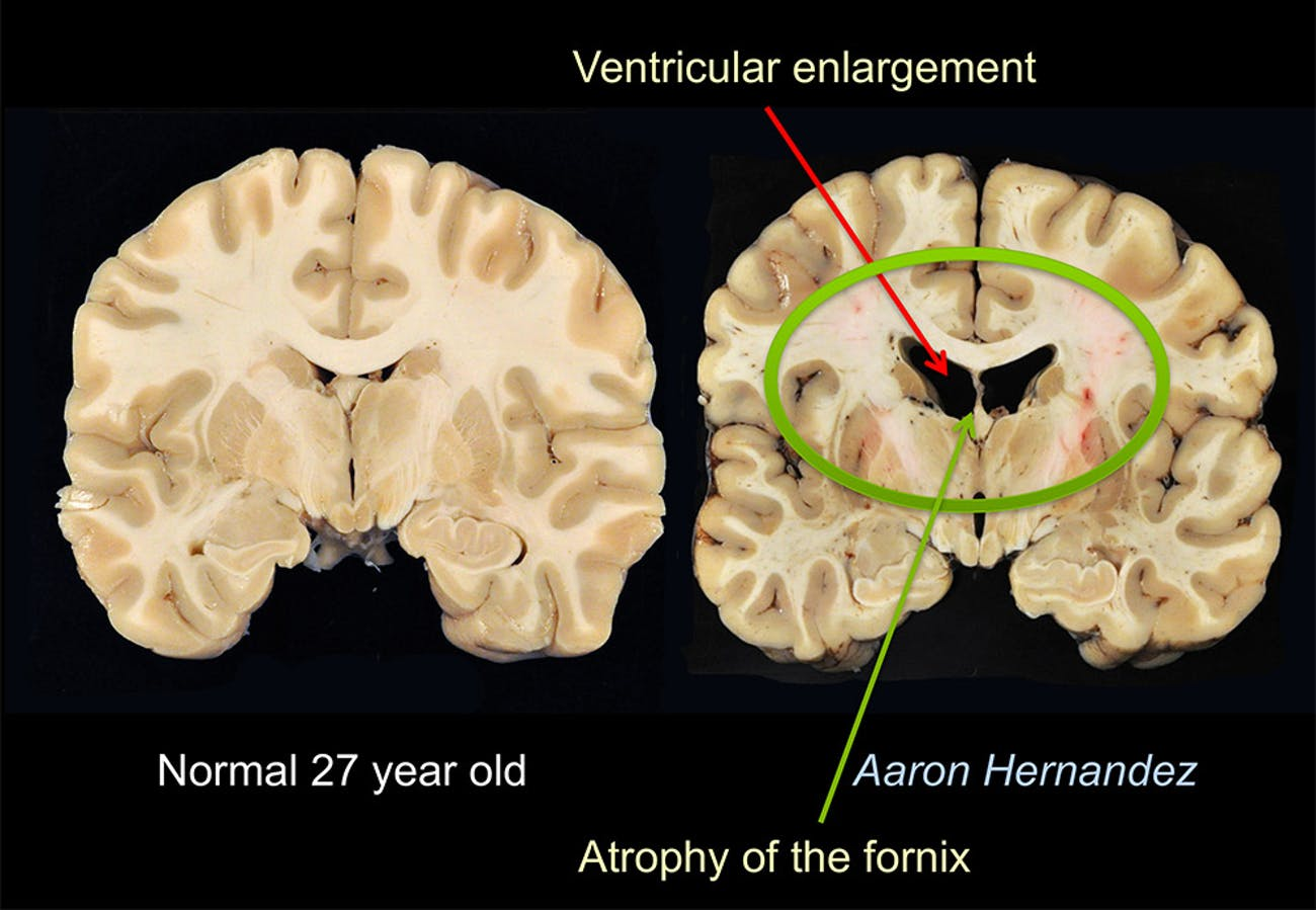Brains Of Young People With Severe >> Aaron Hernandez S Cte Doctors Present Dramatic New Findings Inverse
