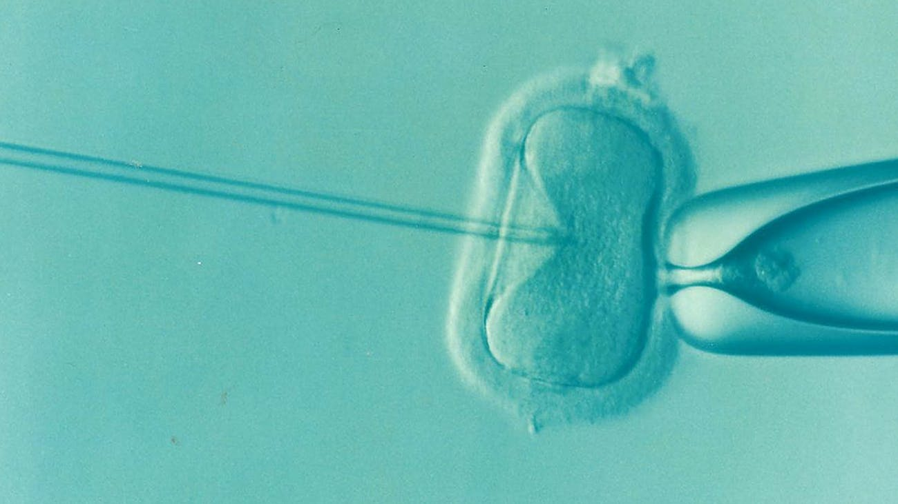 assisted reproduction, IVF, sperm, egg,