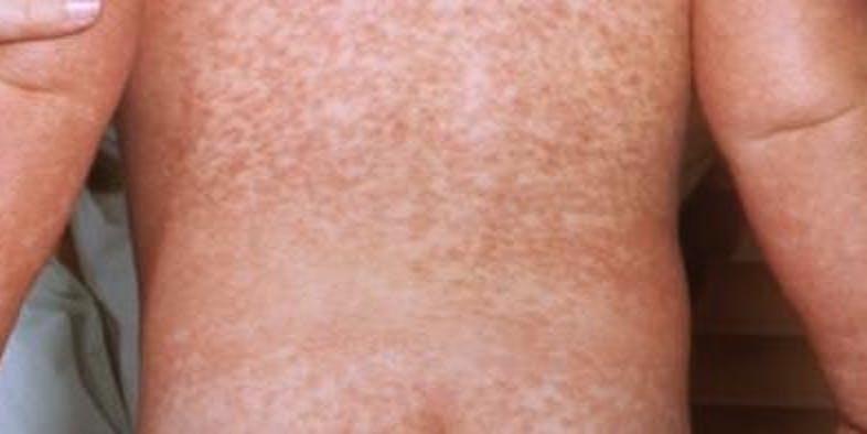 rash measles