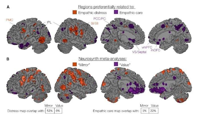 brain neuroscience map MRI fMRI empathy empathic care distress